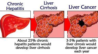 Detoxing Liver Heptiitis C by Liver Cancer Cirrhosis Hepatitis