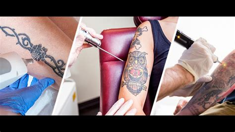 tattoo removal options removal options update models picture