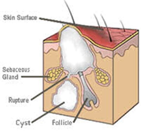 cystic acne diagram pin sebaceous cyst removal on