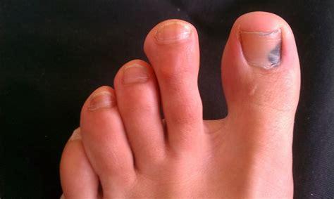 Dark Line On Fingernail by C 243 Mo Tratar Una U 241 A Negra O Morada Con Golpes Y Moratones