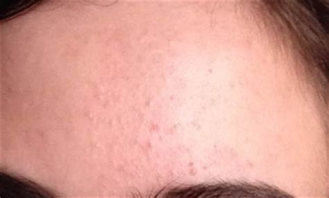 small itchy bumps on tattoo bumps on forehead not pimples skin tiny large