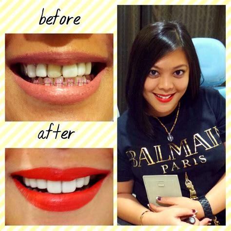 Untuk Sarung Gigi senyum putih cemerlang dengan veneer gigi hanya di audy dental audy dental