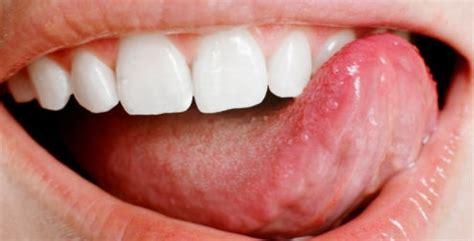 imagenes fuertes medicina remedios caseros contra la gingivitis salud180