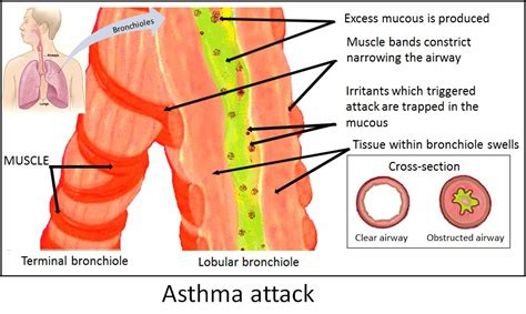 how long does it take to outgrow a bob natural asthma remedies can be potent asthma therapy