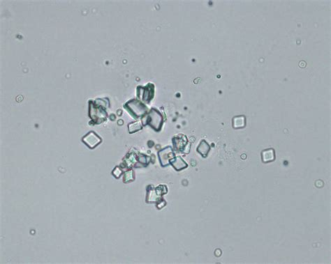 crystals in urine images