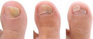 nail detached from nail bed toenail fungus pictures treatment and home remedies