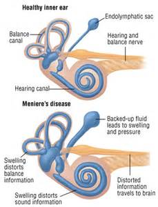 meniere s disease guide causes symptoms and treatment