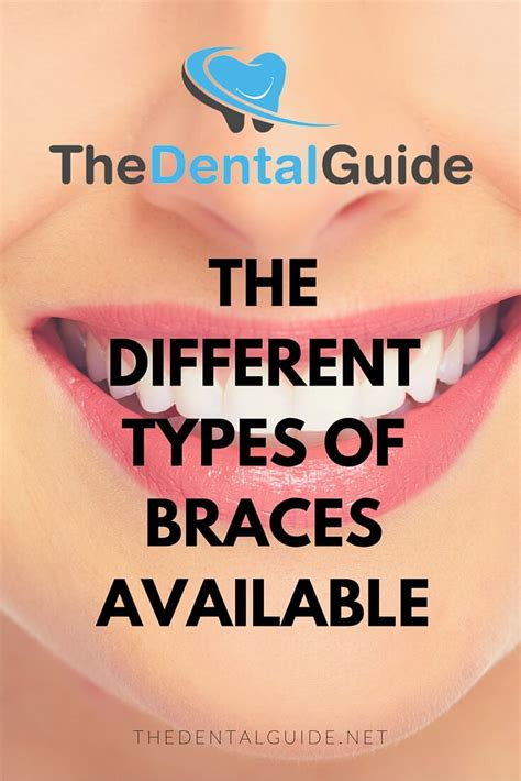 the different types of braces available the dental guide