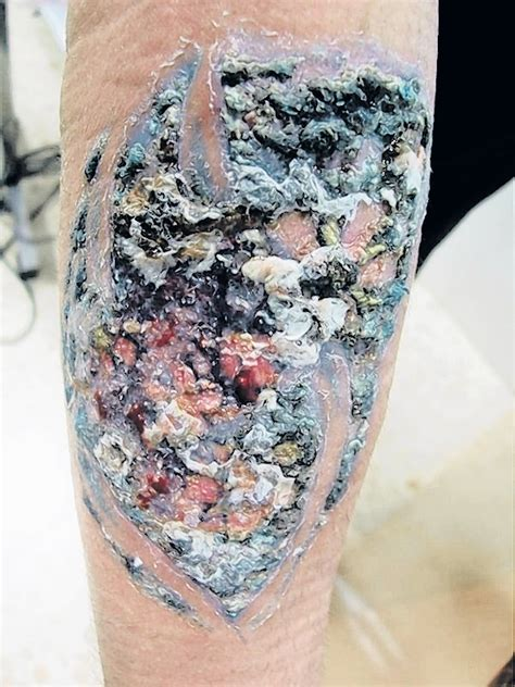 infected tattoo images tattoo collections