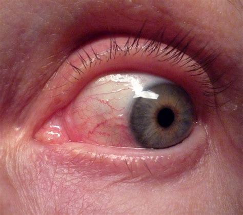 pink eye images conjunctivitis rosmarie voegtli flickr