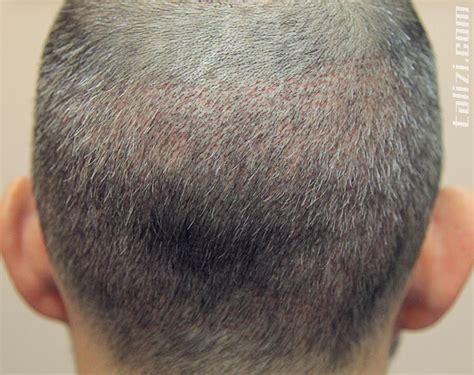 wann wachsen die haare nach einer haartransplantation zeitraum nach der haartransplantation unter verwendung der
