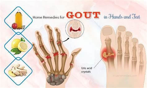 48 home remedies for gout in and
