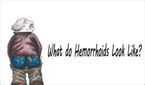 hemorrhoid what they look like what do hemorrhoids look like