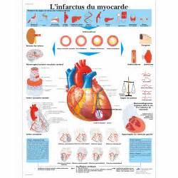 l infarto miocardio l infarctus du myocarde vr2342l 201 ducation sant 233 du