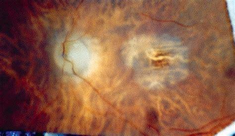 pattern dystrophy eog butterfly shaped pattern dystrophy a genetic clinical
