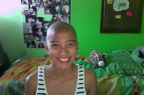 ethiopia alopecia hair care finding peace from ethiopian refugee to united states