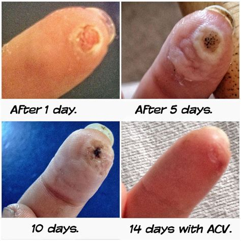 planters wart on finger blister protection foot balm what causes foot odor facts plantars wart removal apple cider