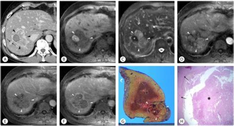 mosaic pattern hcc hepatic abscess mimicking hcc in a 70 year old man with