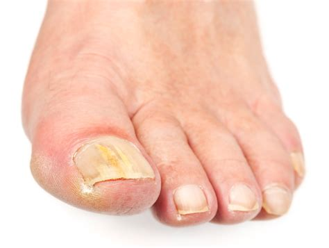 Toe Nail Care by My Detox Foot Bath Stop Toenail Fungus