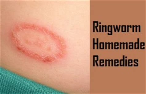 ringworm treatment home remedy home remedies for ringworm in humans ohrhome remedies