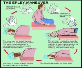 home epley maneuver bppv west family chiropractic
