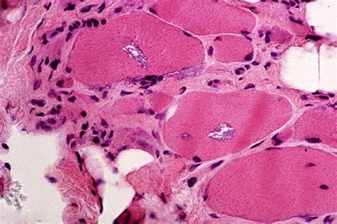 Familial Bodies myositis inclusion inclusion myositis