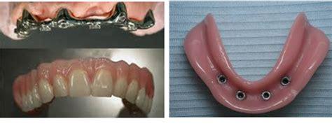 dentiera mobile costo protesi dentarie mobili senza palato cura della pelle