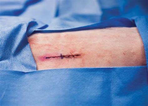 pics of small brain surgery cuts healing how lasers can heal surgeons incisions mit technology