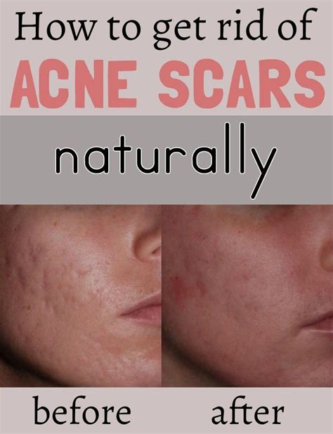 Get Rid Of Acne by 1000 Images About Tips Tricks On How To Get