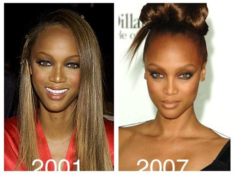 careers with banks plastic surgery before and after banks