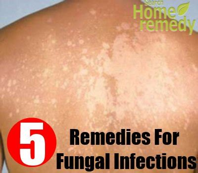 skin yeast infection treatment fungal skin infections treatment quotes