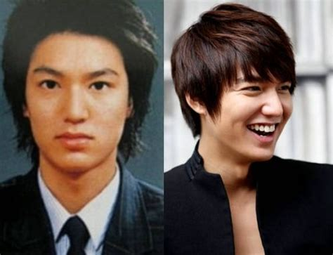 facts of korean actor lee min ho plastic surgery the lee min ho plastic surgery secrets