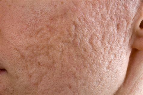 Acne Scar understanding acne scars post inflammatory hyperpigmentation abq skin care acne clinic