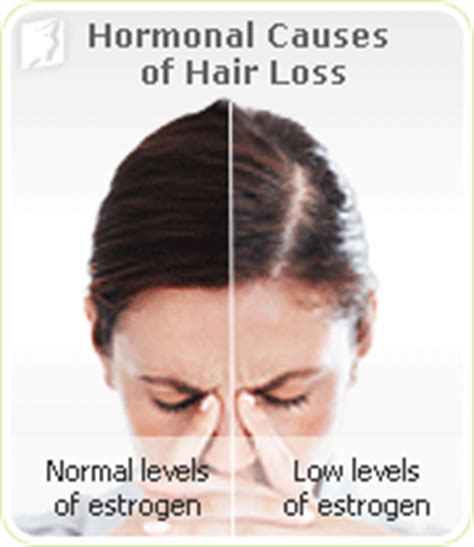 the causes of thinning hair in women hair loss symptom information 34 menopause symptoms com