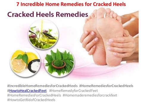 7 home remedies for cracked heels