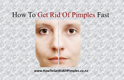 how to get rid of pimples fast video slides how to get rid of pimples fast