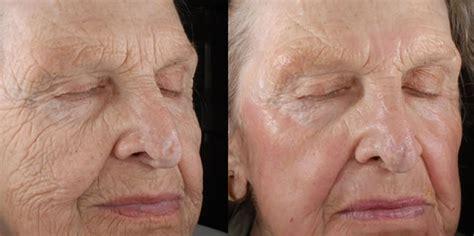 tattoo removal mobile al co21 advanced dermatology skin care centre