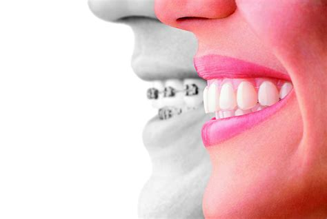 invisalign vs traditional braces no more brace with invisalign warning embarrassing