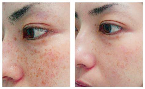 african american skin disorders fort lauderdale chemical peels dermatology fort lauderdale fl