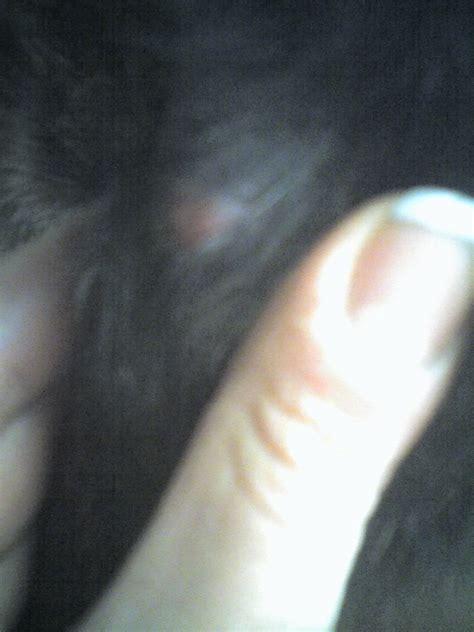 bozzo in testa tumore tumore pelle era bolla rossa strana inquietante