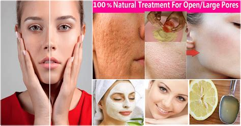 12 Ways To Minimize Your Pores by How To Reduce Pores On Permanently By Home Remedy