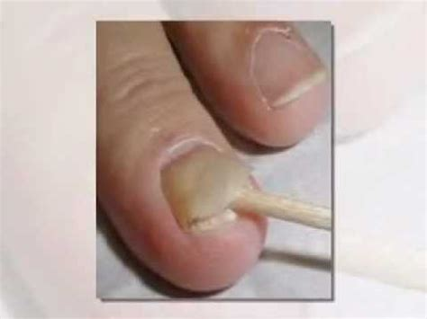 How Do You Get Nail Furniture by Nail Fungus Guide How To Get Rid Of Nail Fungus