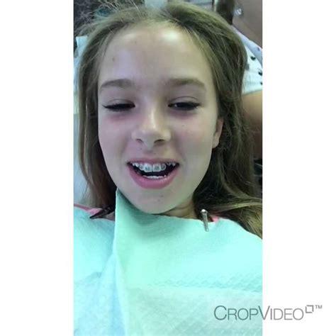 best braces braces top only