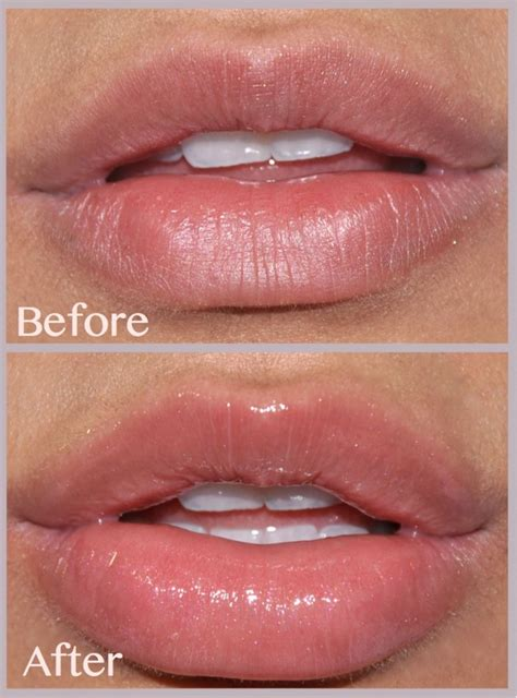 Lip Plumbing by Tried Tested A Lip Plumper That Seriously Works