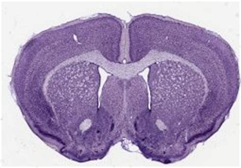 mouse brain coronal section staining behavioral neuroscience lab 2009 bg