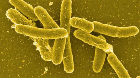 intossicazione alimentare sintomi salmonellosi un intossicazione alimentare quali i sintomi