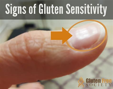 Stool Test For Gluten Intolerance by Gluten Sensitivity And Iron Deficiency Anemia