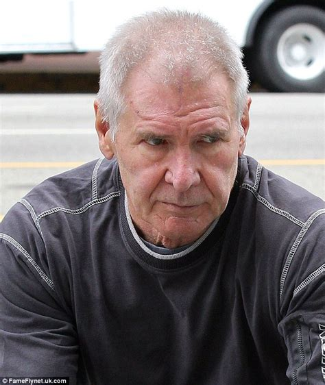 covering a large scar on forehead harrison ford sports nasty scar on his forehead in la