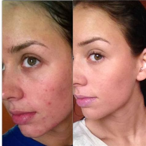 Skin Purging Detox by 12 Best Images About Before And After On Henna