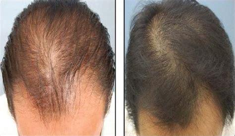 Zinc Vitamin Buat Rambut Rontok tips mudah merawat rambut rontok